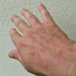 skinproblems